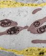 [Translate to English:] Pseudofarvet elektronmikrograf, der viser nanopartikler, der cirkulerer i blodbanen sammen med røde blodlegemer (rødbrune), og de der er opfanget i endotelceller, der ligger i blodkaret (gule) (Figur: Yuya Hayashi).